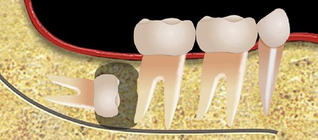 Cirurgia dos dentes inclusos - dente do siso